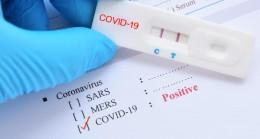 Aktur'da Covid-19 pozitif vaka tespit edildi